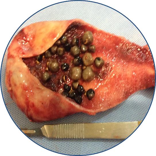 Cirurgia de Retirada de Pedra na Vesícula
